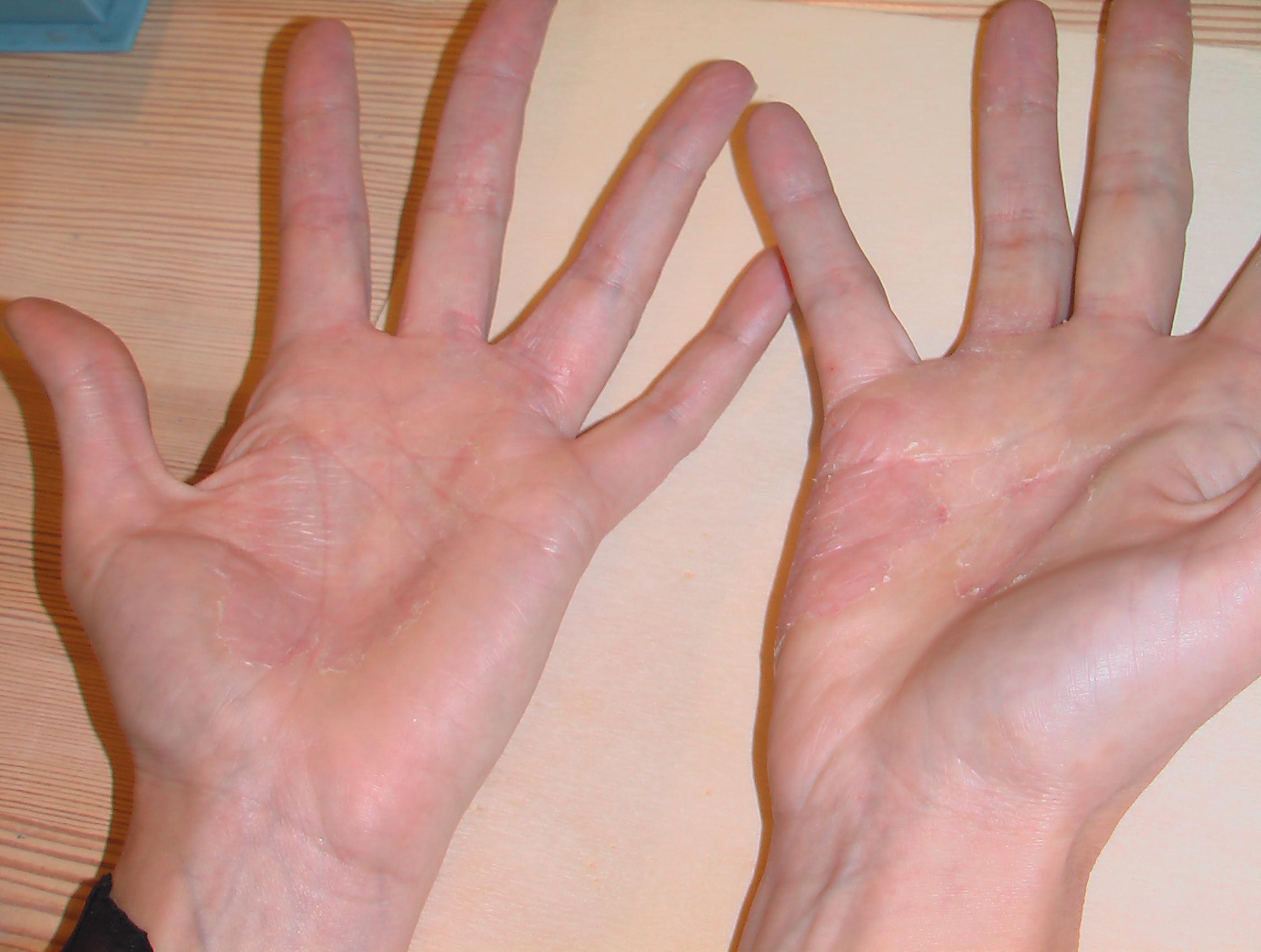 wolvet allergie symptomen